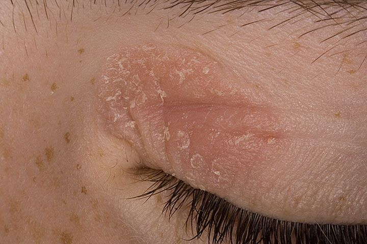Certain essential oils can cause skin irritation and/or ...