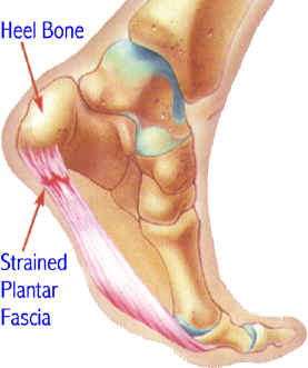 heel pain Heel pain causes and prevention