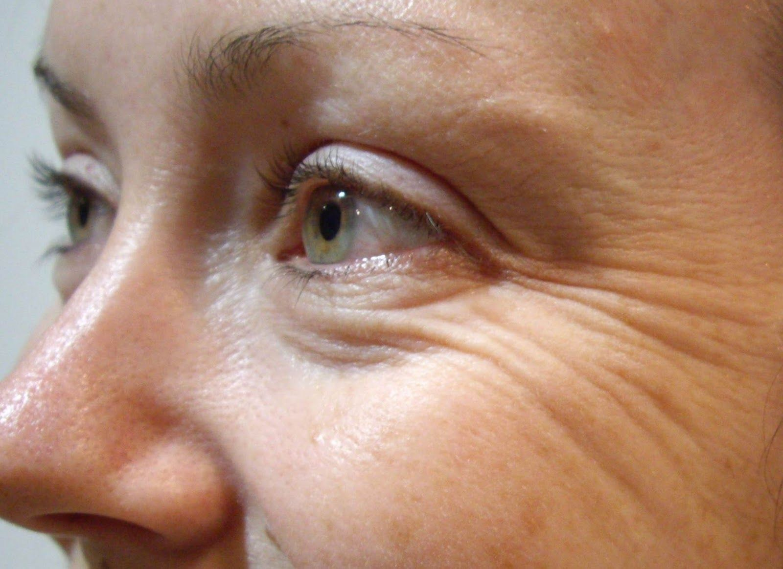 Pictures of Wrinkly Skin Face - #rock-cafe