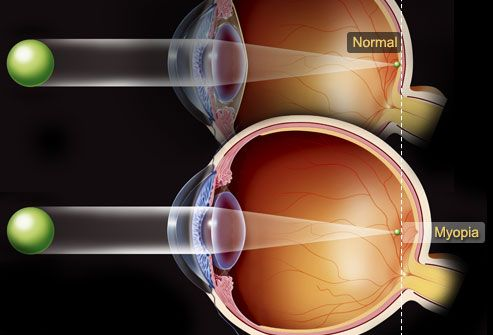 Nearsightedness causes and treatment