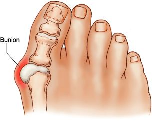 bunion causes symptoms and treatment