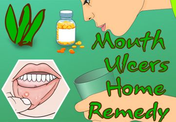 Mouth blisters remedies