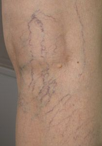 do you have green blue swollen veins you are likely to have