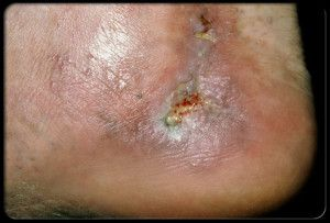 Blot clots and ulcers near ankle areas