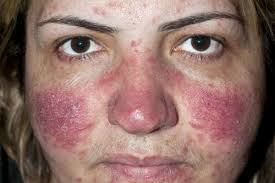 Rosacea ( Red Patches on Skin ) Treatment with Natural Remedies