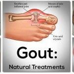Powerful Home Remedy For Curing Gout In 7 Days