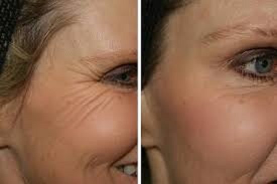 Look 10 Years Younger Naturally Overnight: Secret Facial Mask