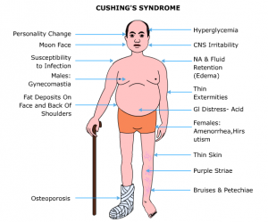 Cushing's Syndrome and Weight Gain
